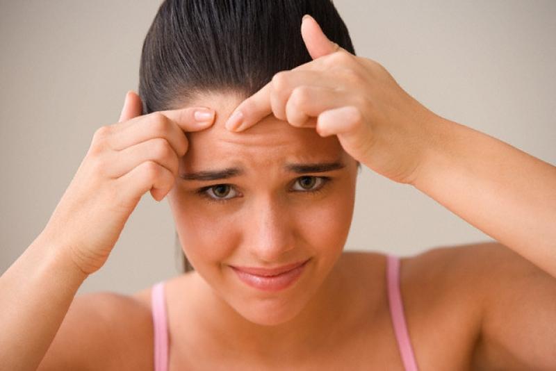 cauze acnee